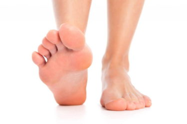 足底筋膜炎(Plantar fasciitis)