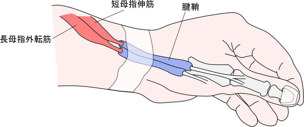 ド・ケルバン病の明確な原因はわかっていませんが、痛みや腫脹の原因構造は母指に付いている腱(長母指外転筋、短母指伸筋)と腱鞘に起因しています。