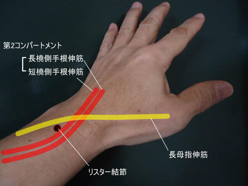 遠位インターセクション症候群は、長母指伸筋の腱鞘炎のことを指します。長母指伸筋腱(第3コンパートメント)と第2コンパートメント(短橈側手根伸筋腱と長橈側手根伸筋腱)の交差部位における摩擦が、発症のメカニズムです。