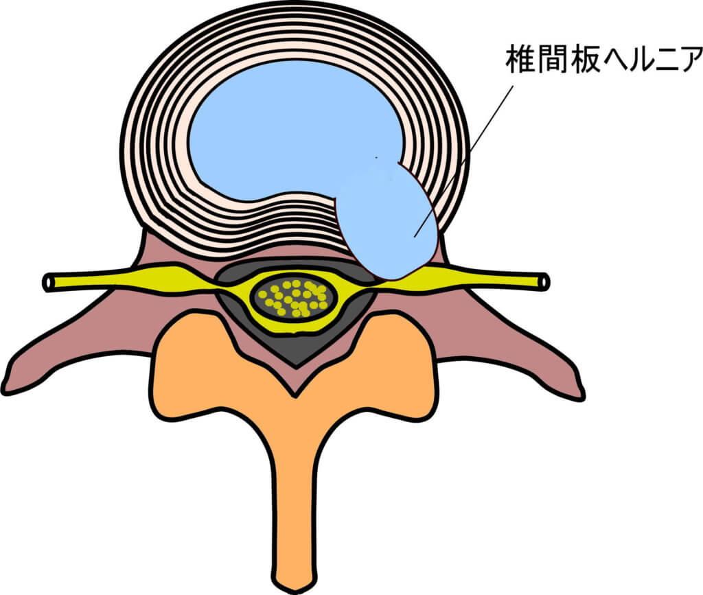 椎間板ヘルニア   線維輪の断裂部位に向かって線維輪が変位をしている。それに伴い脊髄神経を圧迫している。
