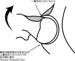 カム型もしくはピンサー型インピンジメントでは、ともに関節唇の損傷が認められます。関節唇の損傷は、寛骨臼前上部が好発部位となっていますが、寛骨臼の後下部にも損傷が認められるケースが報告されています。これは、Contre-Coupメカニズムによって発生していると思われます。Contre-Coupとは対側衝撃のことを意味しています。