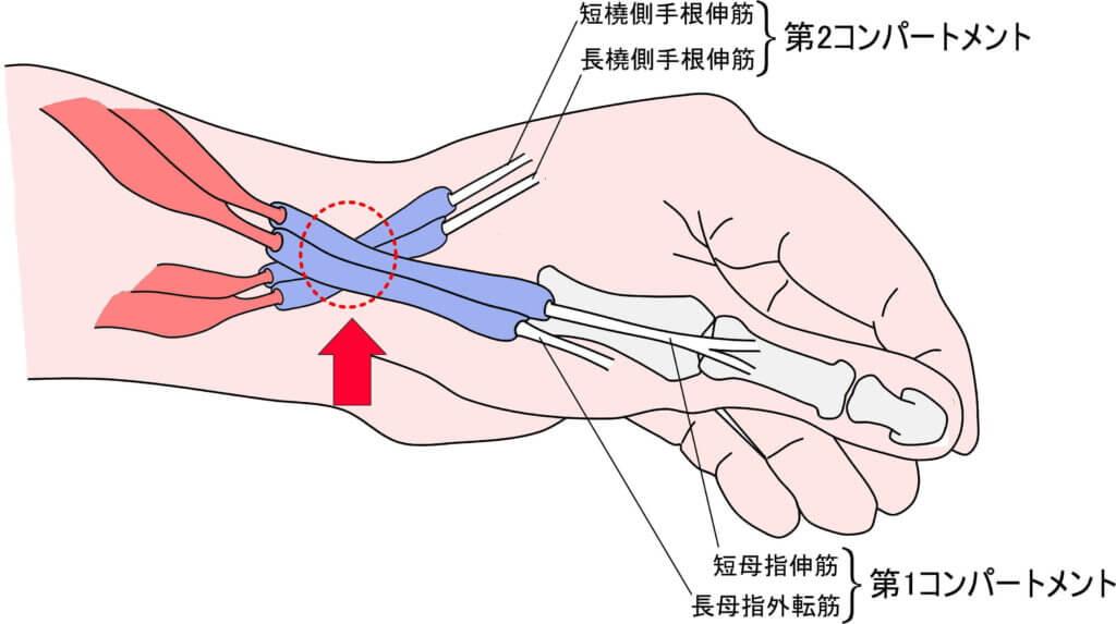 第1コンパートメントと第2コンパートメントの交差部位(赤矢印)において、インターセクション症候群は発生する。