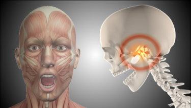顎関節の関節運動学と関連症状