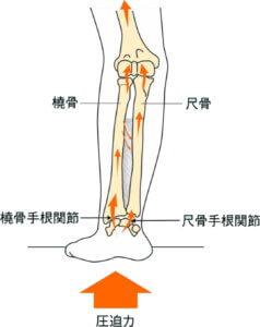 上肢に圧迫力が加わったときの力の分散
