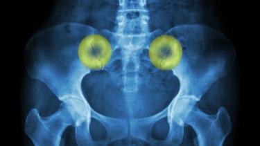 仙腸関節の解剖学と関連症状