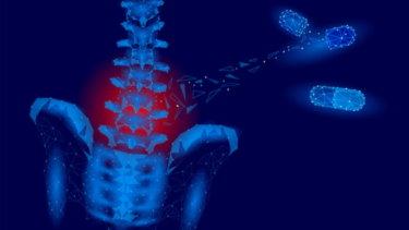 仙腸関節障害の原因・症状・治療法