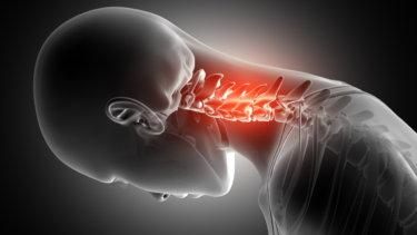 前方頚椎症候群の原因・症状・治療法