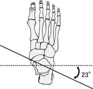 前額断面から見た距骨の運動軸の傾き