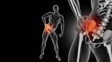 変形性股関節症の原因・症状・治療法