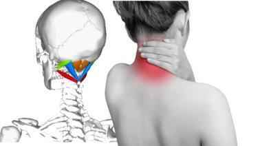 後頭下筋群の解剖学と関連症状