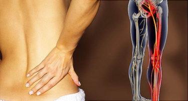 腰椎椎間板ヘルニア(Lumbar Disc Herniation)