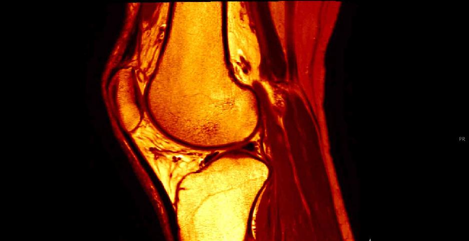 膝窩筋腱炎