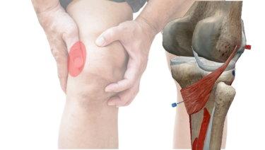 膝窩筋の解剖学と関連症状