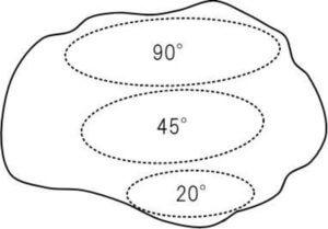 膝蓋軟骨の接触面