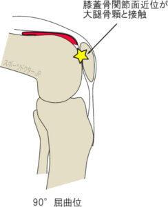 膝蓋軟骨近位と大腿骨顆が接触