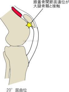 膝蓋軟骨遠位部と大腿骨顆の接触