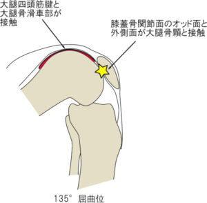膝関節135°屈曲位における膝蓋軟骨の接触部位