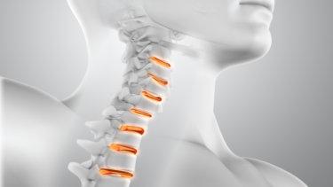 頚椎の解剖学と関連症状