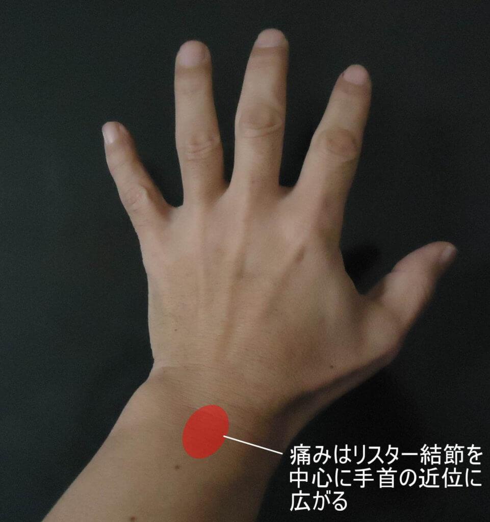 リスター結節を中心に手首近位に広がる