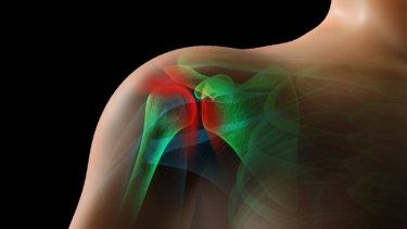 SICK肩甲骨症候群の原因と症状