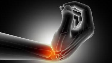 TFCC(三角線維軟骨複合体)損傷の原因・症状・治療法